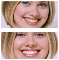 あなたの歯を短時間で安全にホワイトニング!ブライトホワイト・システム